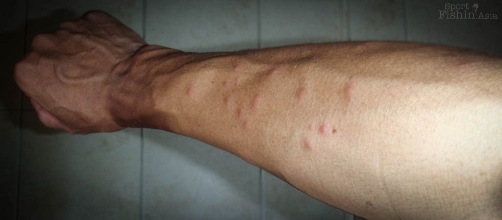 Flea Bites : Symptoms and Treatments - Health Line